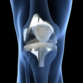 Total Knee Replacement - MidAmerica Total Joint Clinic