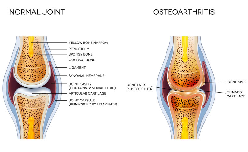 Graphic showing the difference between what a normal knee joint looks like versus a knee joint with osteoarthritis.